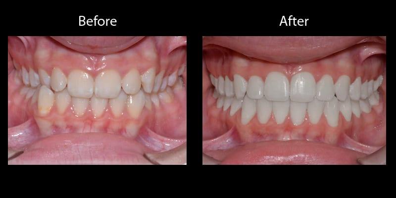 Teeth 13