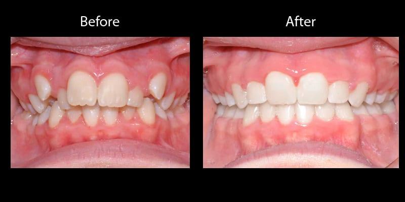 Teeth 6