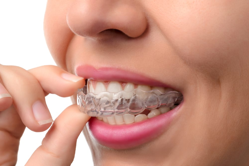invisible aligners and Line-M-Up are helping patients